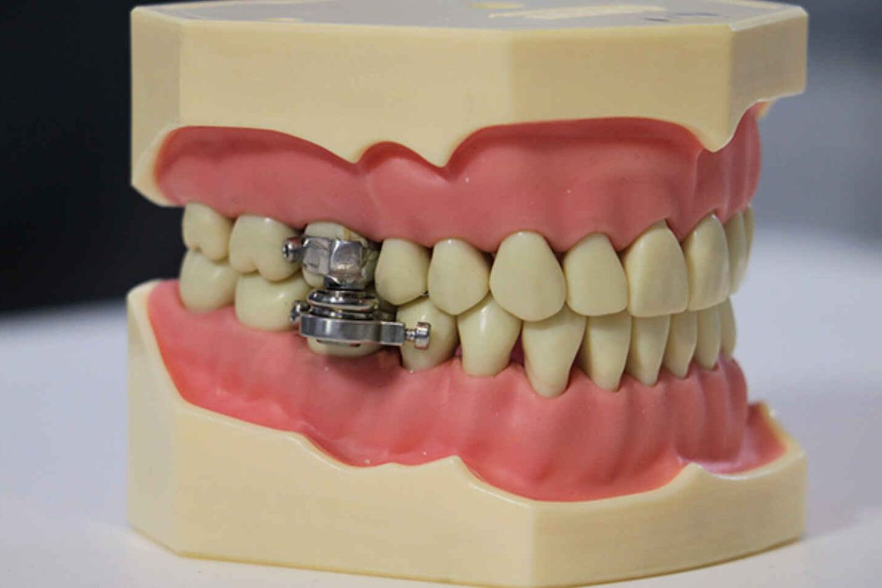 The wildest trick to lose weight: You will never open your mouth again with this device